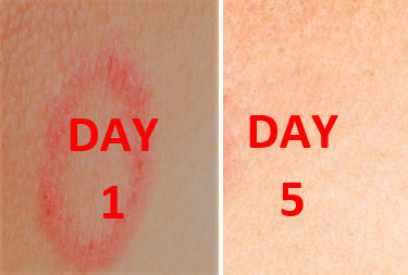 How to cure ringworm fast